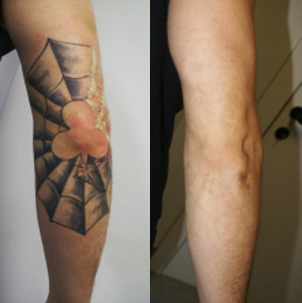 Tattoo Removal - Before and after photo